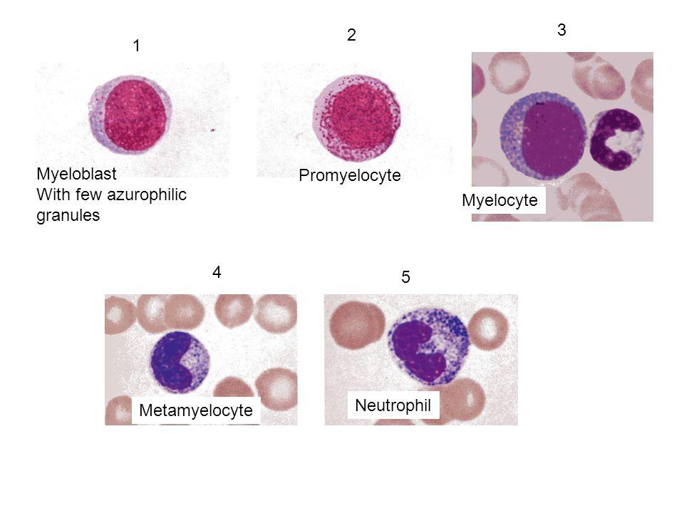 3 2 1 Myeloblast With few azurophilic granules Promyelocyte Myelocyte 4 5 Neutrophil Metamyelocyte