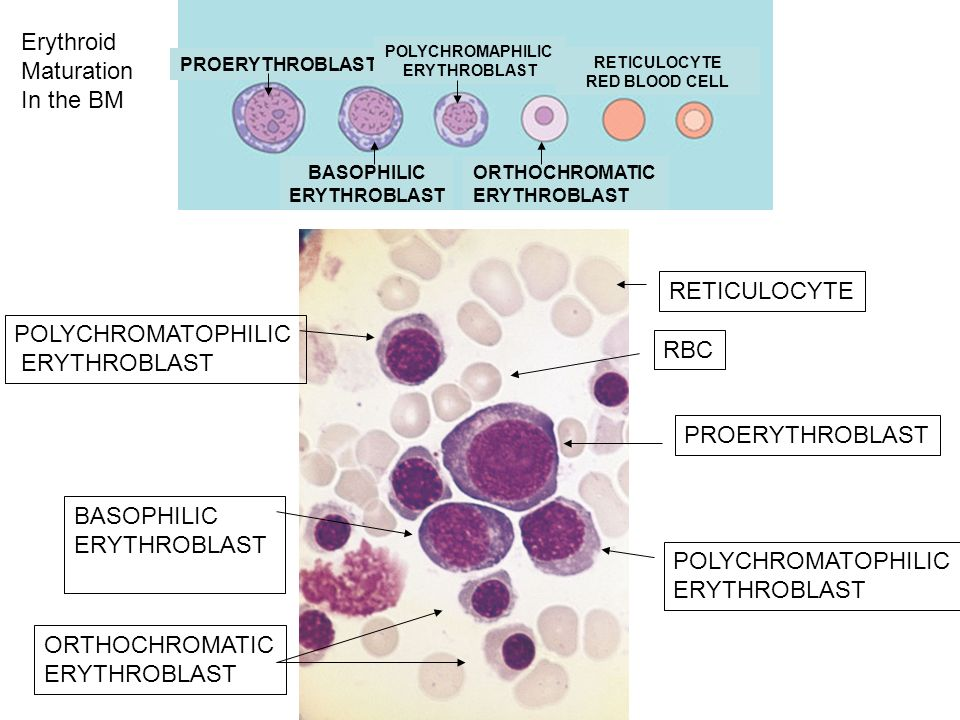 Erythroid Maturation In the BM RETICULOCYTE POLYCHROMATOPHILIC