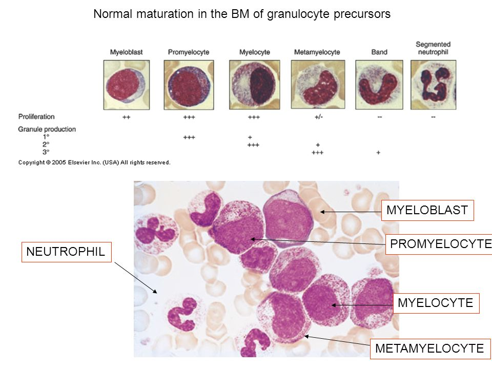 Normal maturation in the BM of granulocyte precursors