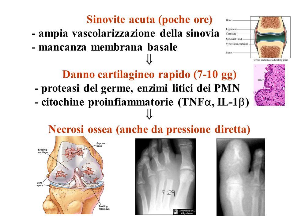 Sinovite acuta (poche ore) - ampia vascolarizzazione della sinovia