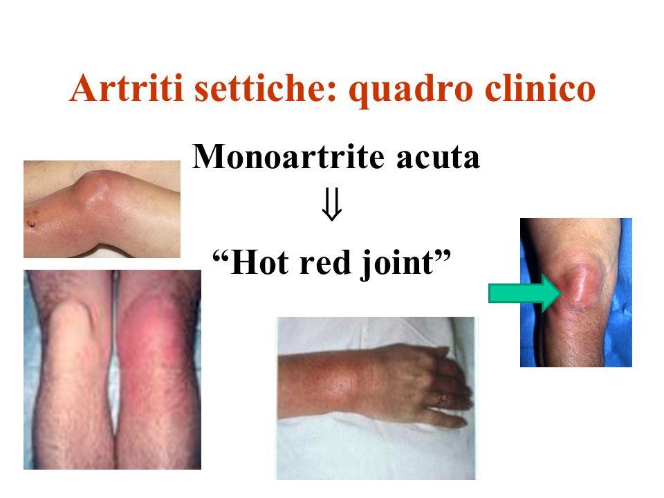 Artriti settiche: quadro clinico