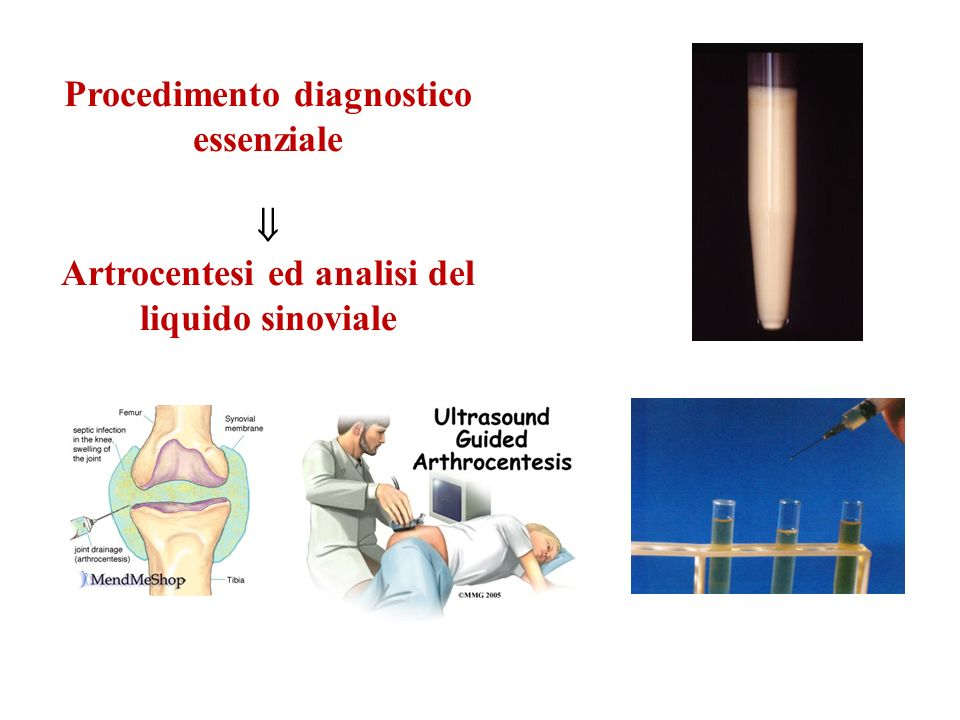 Procedimento diagnostico essenziale
