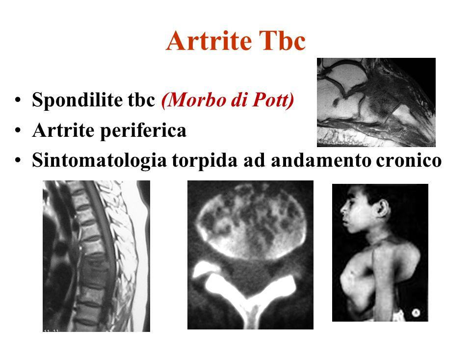 Artrite Tbc Spondilite tbc (Morbo di Pott) Artrite periferica