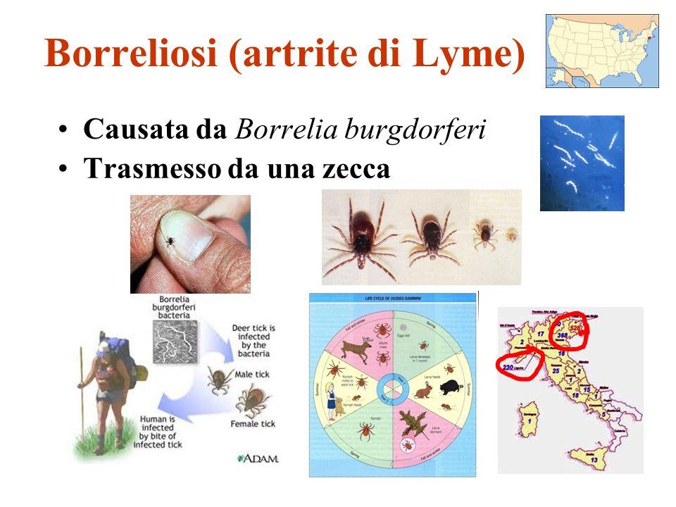 Borreliosi (artrite di Lyme)
