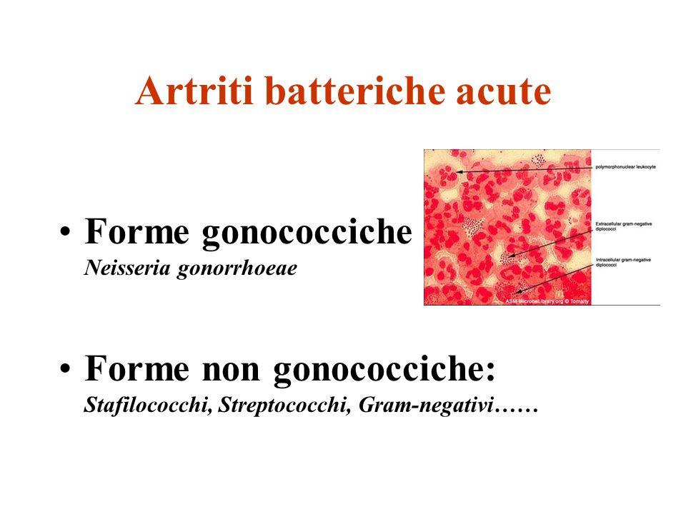Artriti batteriche acute