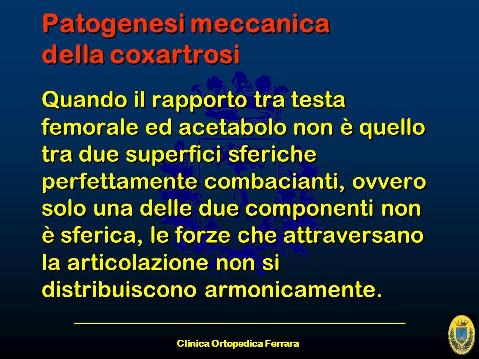 Patogenesi meccanica della coxartrosi