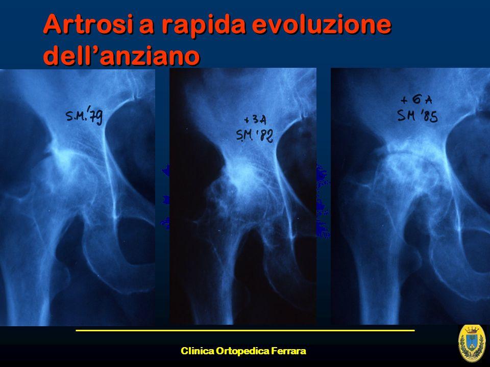 Artrosi a rapida evoluzione dell'anziano