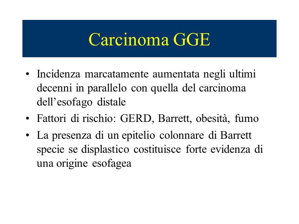 Carcinoma GGE Incidenza marcatamente aumentata negli ultimi decenni in parallelo con quella del carcinoma dell'esofago distale.