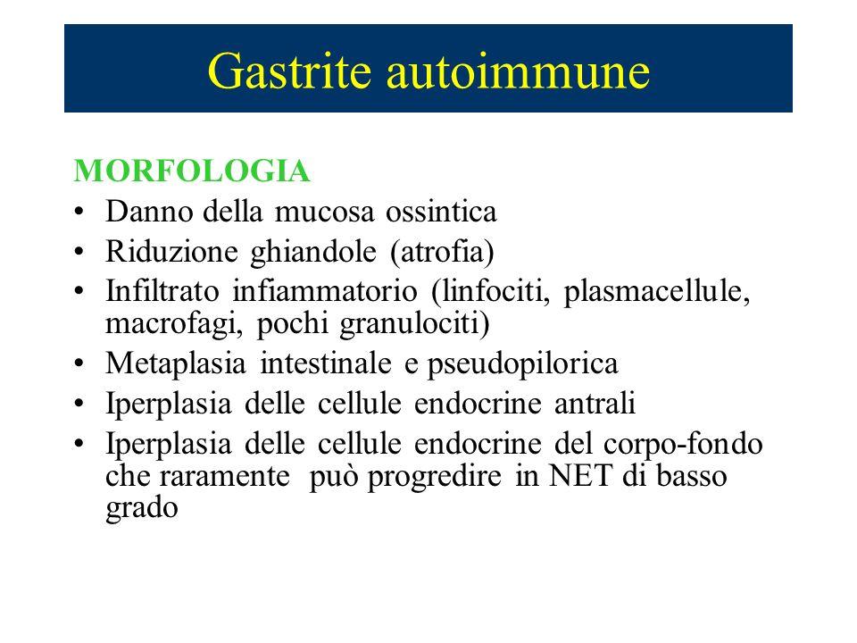 Gastrite autoimmune MORFOLOGIA Danno della mucosa ossintica