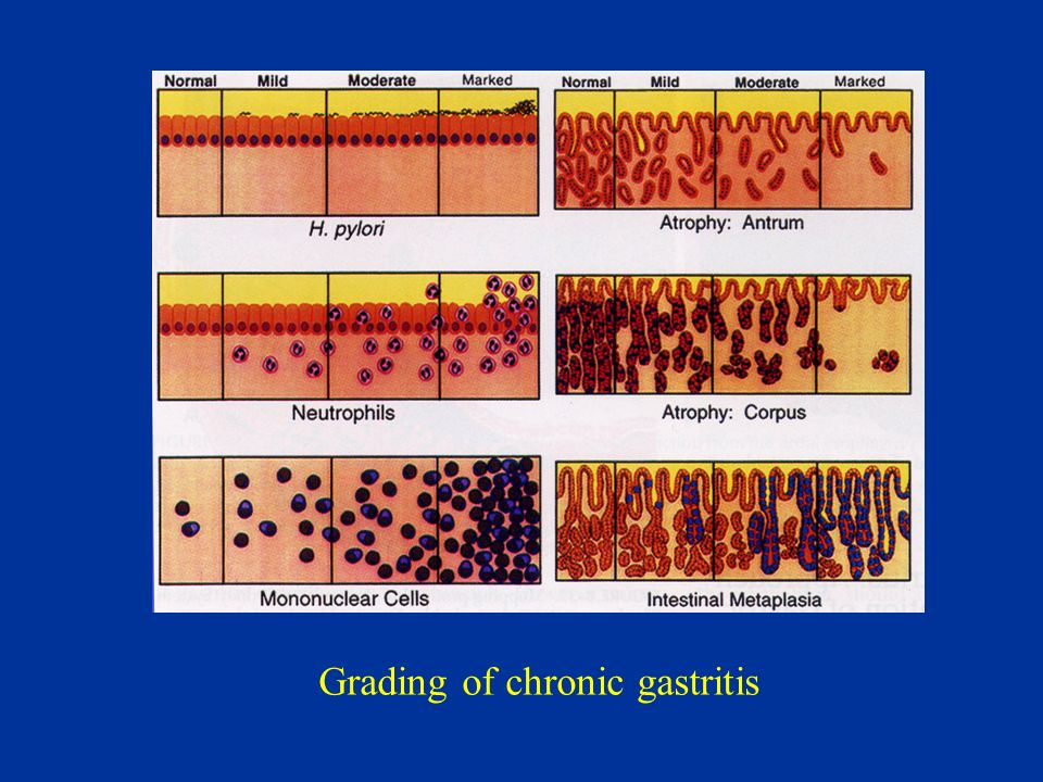 Grading of chronic gastritis