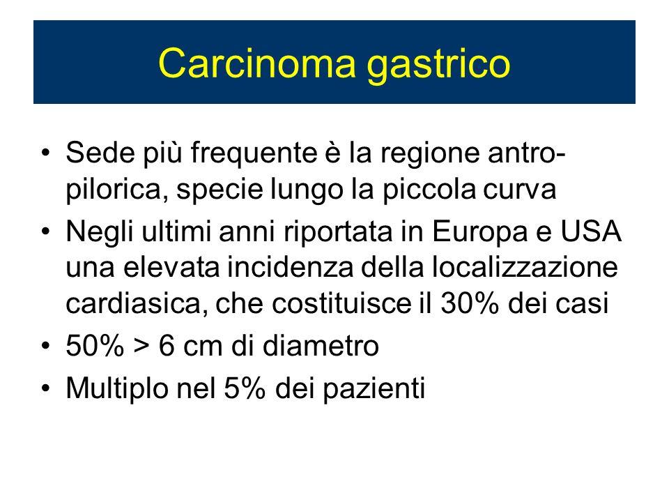 Carcinoma gastrico Sede più frequente è la regione antro-pilorica, specie lungo la piccola curva.