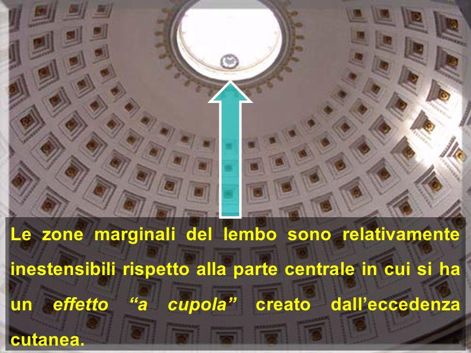 Le zone marginali del lembo sono relativamente inestensibili rispetto alla parte centrale in cui si ha un effetto a cupola creato dall'eccedenza cutanea.