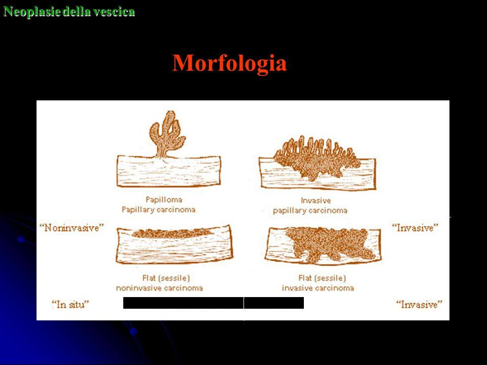 Neoplasie della vescica