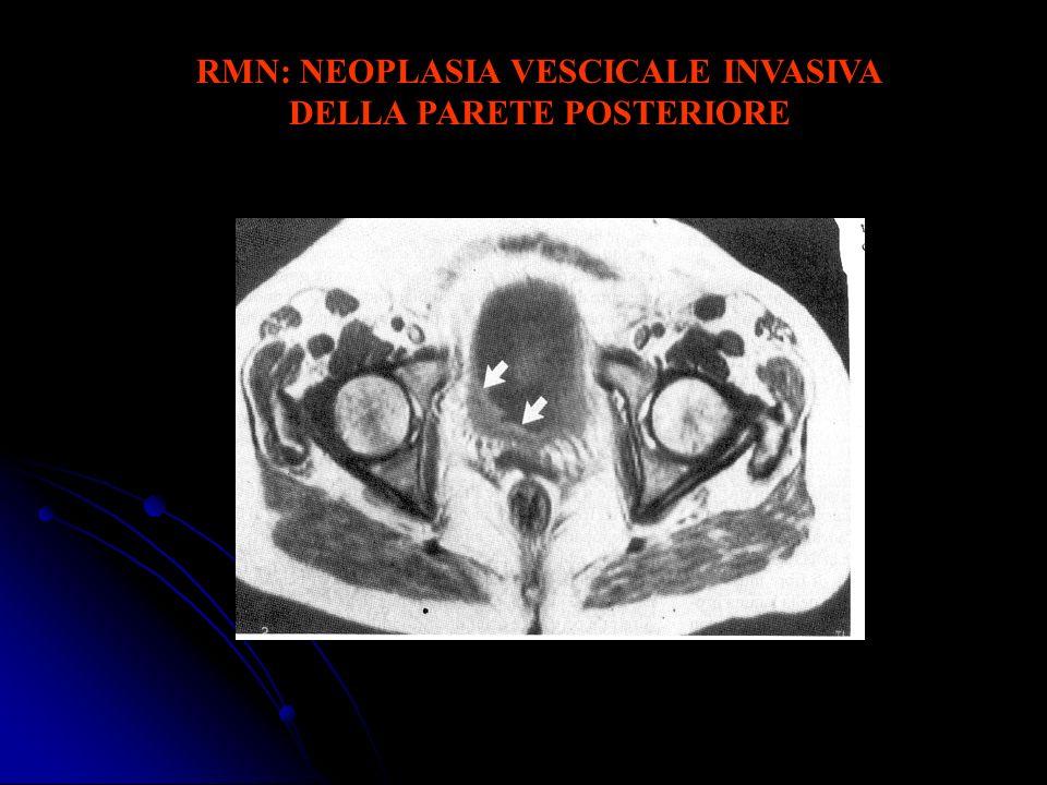 RMN: NEOPLASIA VESCICALE INVASIVA DELLA PARETE POSTERIORE