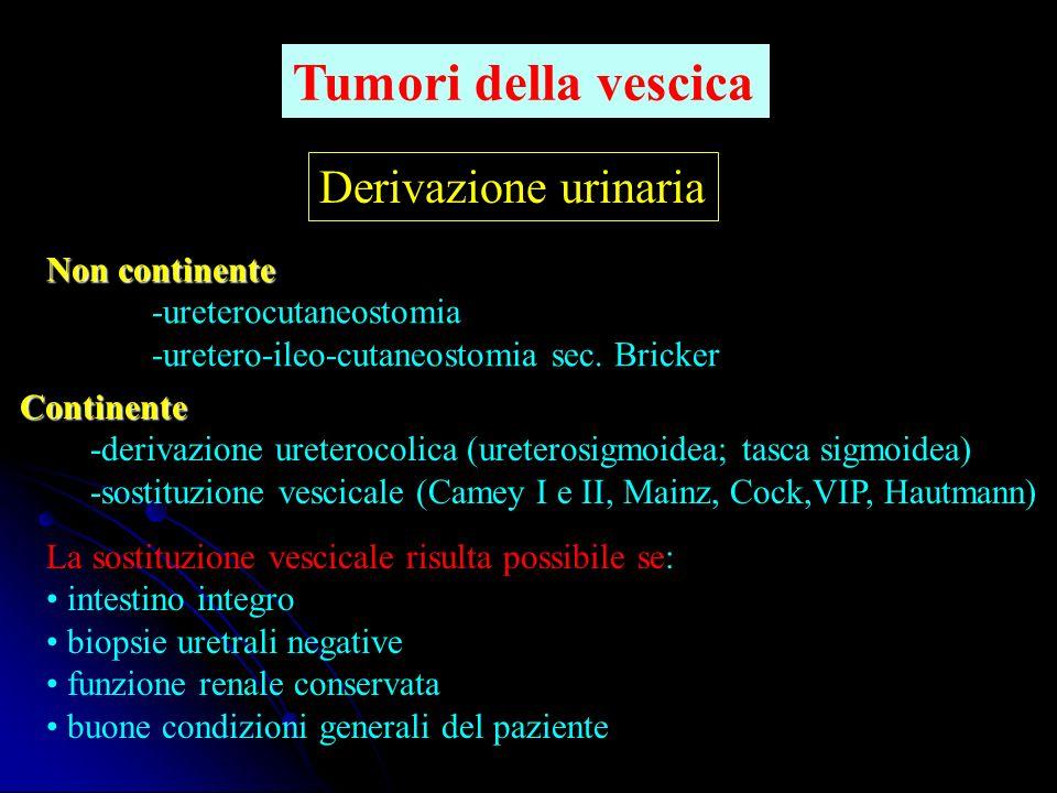 Tumori della vescica Derivazione urinaria Non continente