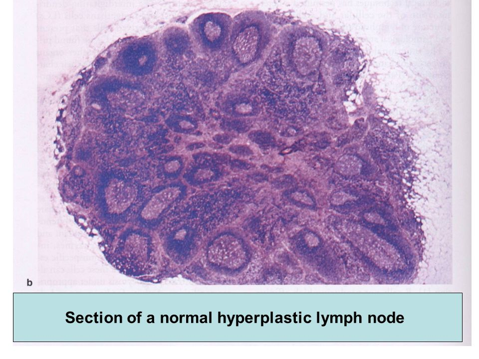 Section of a normal hyperplastic lymph node