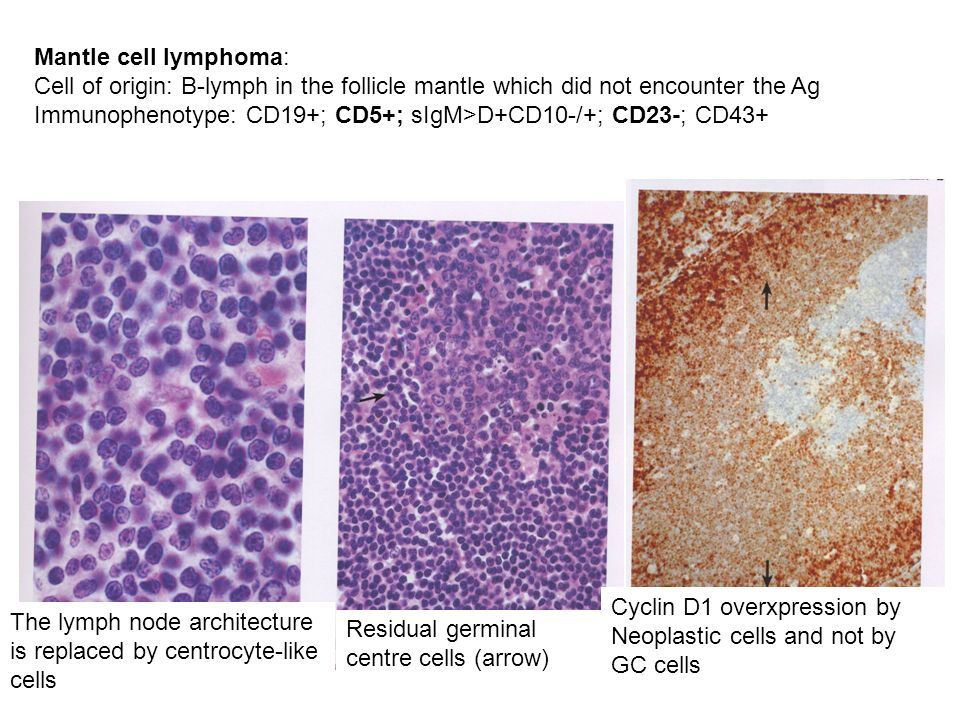 Mantle cell lymphoma: Cell of origin: B-lymph in the follicle mantle which did not encounter the Ag.
