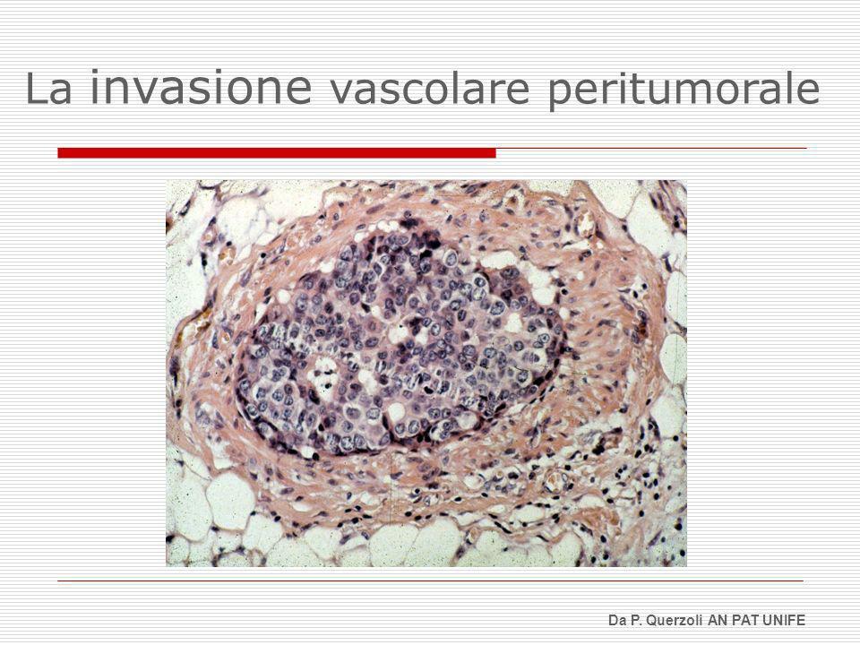 La invasione vascolare peritumorale