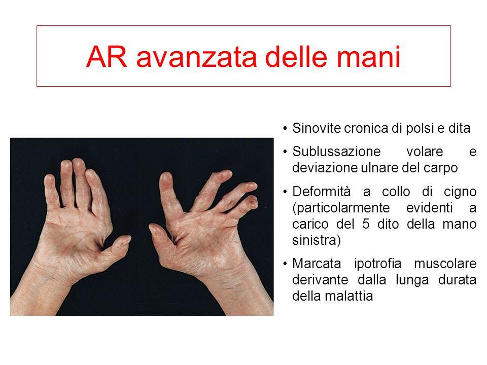 AR avanzata delle mani Sinovite cronica di polsi e dita