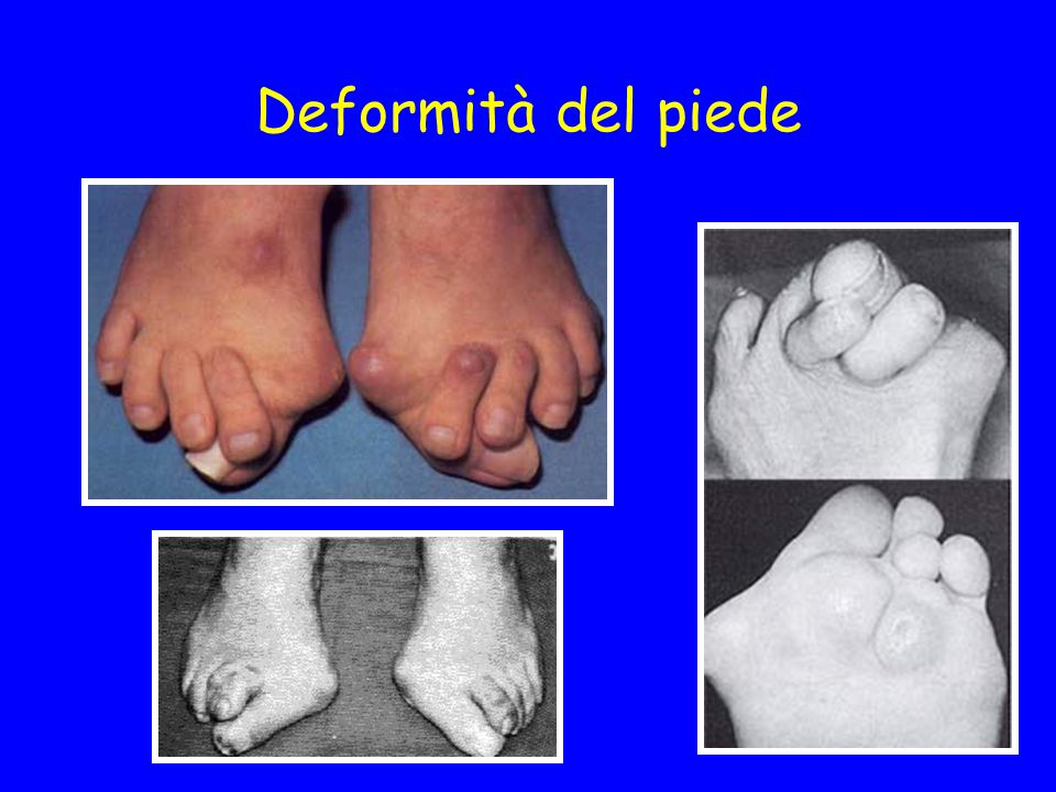 Deformità del piede