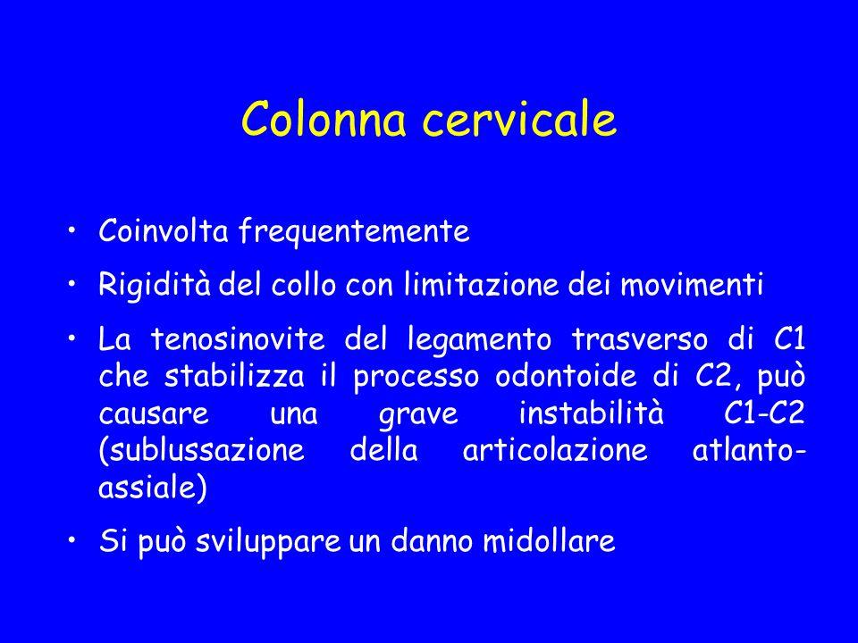 Colonna cervicale Coinvolta frequentemente
