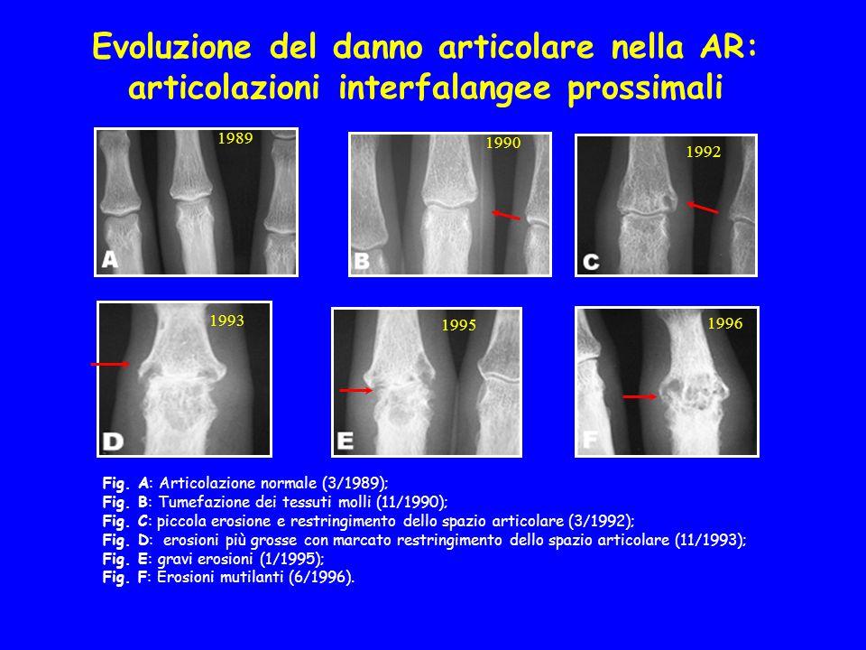 Evoluzione del danno articolare nella AR: articolazioni interfalangee prossimali