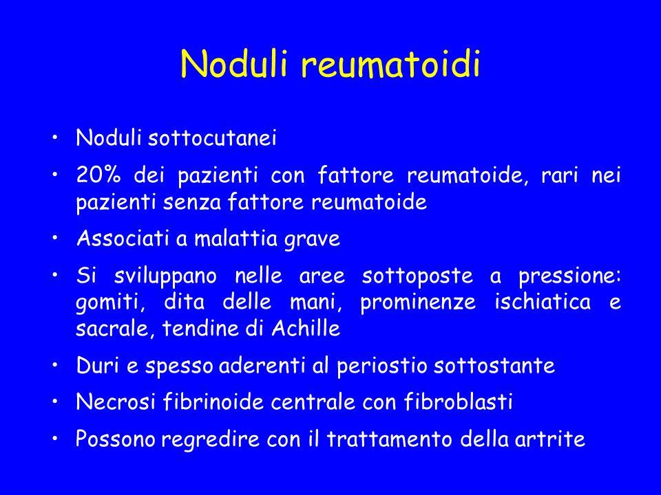 Noduli reumatoidi Noduli sottocutanei