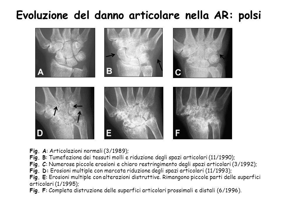 Evoluzione del danno articolare nella AR: polsi