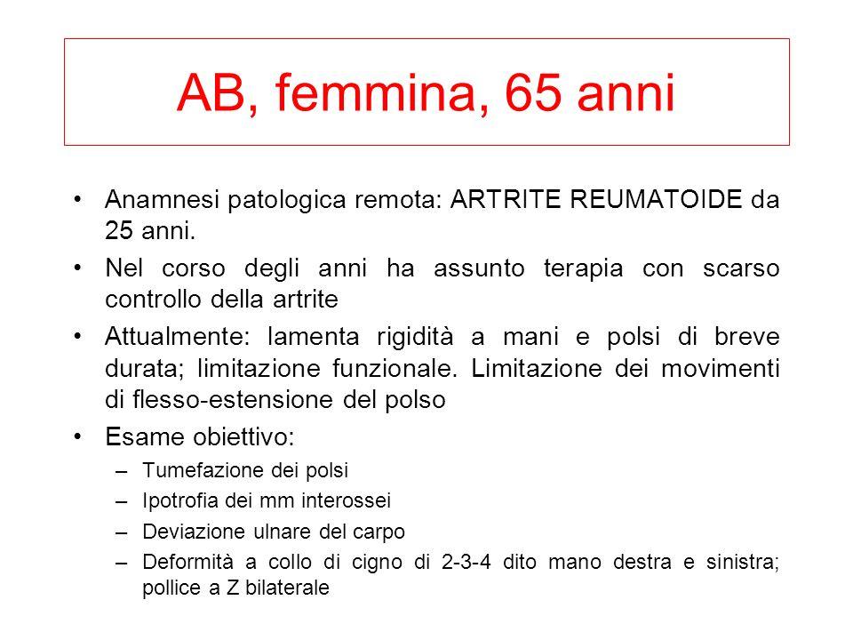 AB, femmina, 65 anni Anamnesi patologica remota: ARTRITE REUMATOIDE da 25 anni.