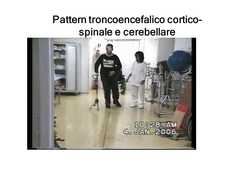 Pattern troncoencefalico cortico-spinale e cerebellare