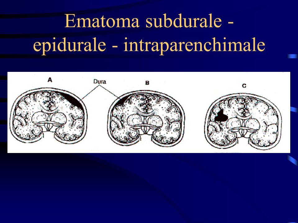 Ematoma subdurale - epidurale - intraparenchimale