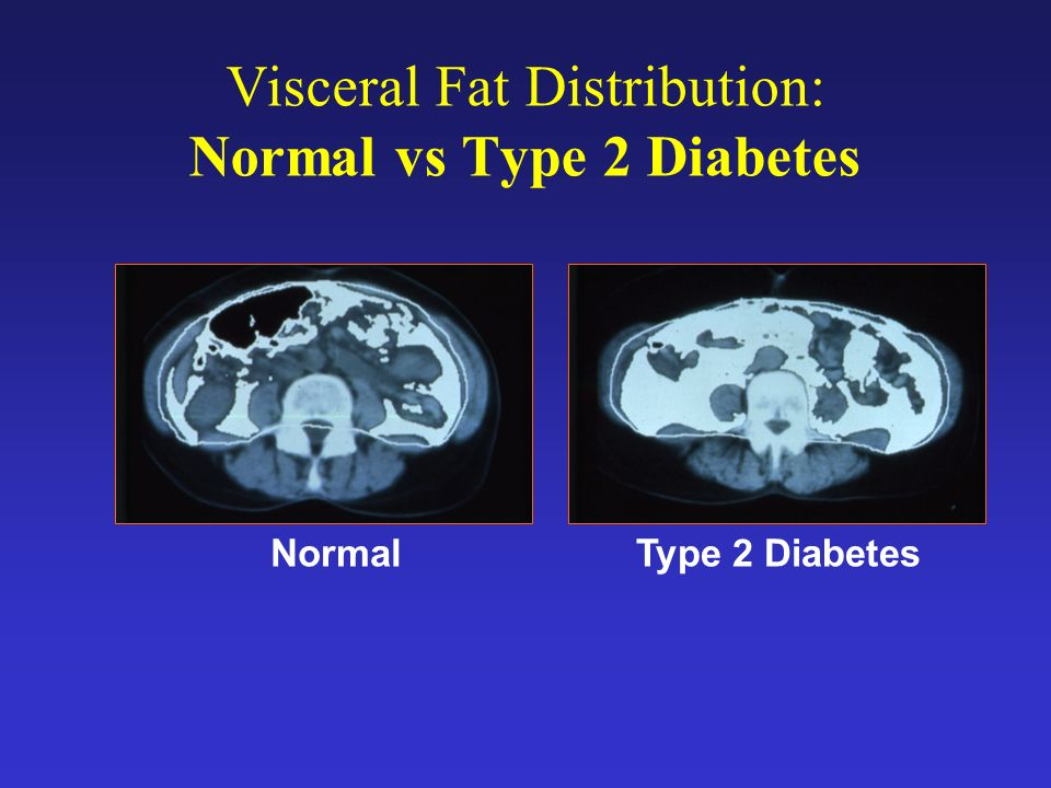 Visceral Fat Distribution: Normal vs Type 2 Diabetes
