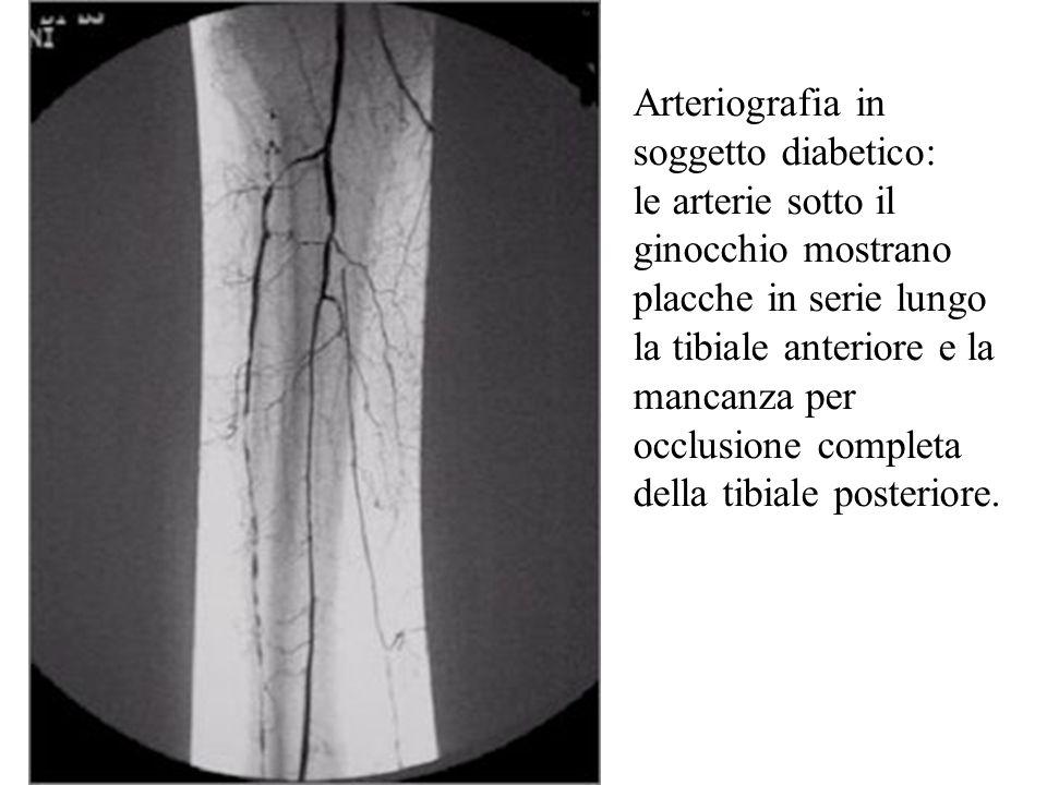 Arteriografia in soggetto diabetico: le arterie sotto il ginocchio mostrano placche in serie lungo la tibiale anteriore e la mancanza per occlusione completa della tibiale posteriore.
