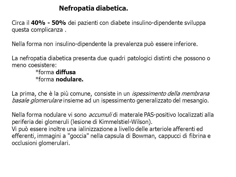 Nefropatia diabetica. Circa il 40% - 50% dei pazienti con diabete insulino-dipendente sviluppa. questa complicanza .