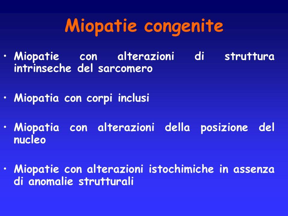 Miopatie congenite Miopatie con alterazioni di struttura intrinseche del sarcomero. Miopatia con corpi inclusi.