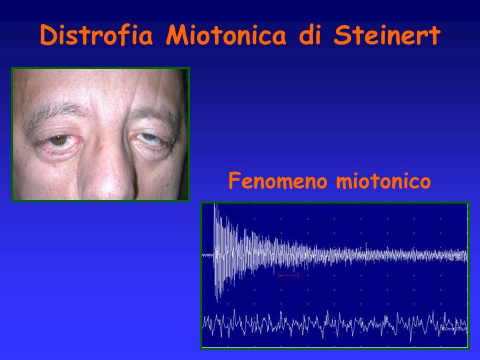 Distrofia Miotonica di Steinert