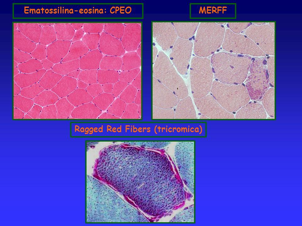 Ematossilina-eosina: CPEO Ragged Red Fibers (tricromica)