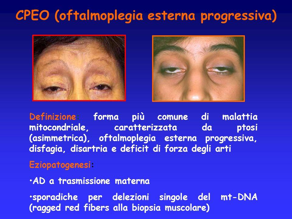 CPEO (oftalmoplegia esterna progressiva)