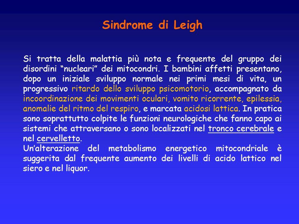 Sindrome di Leigh