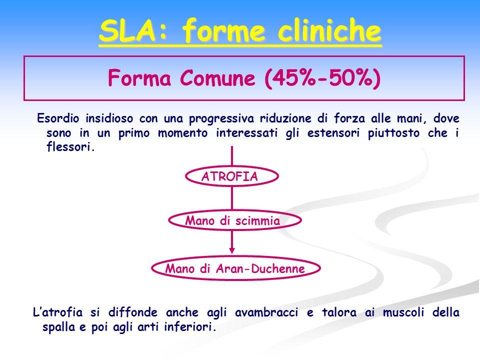 SLA: forme cliniche Forma Comune (45%-50%)