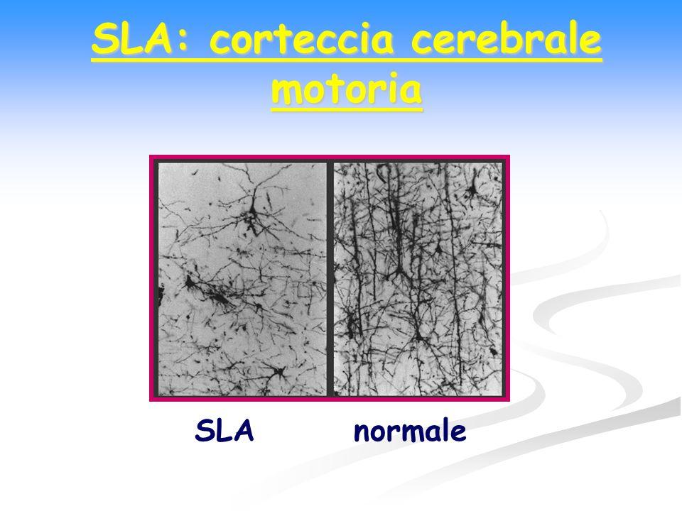 SLA: corteccia cerebrale motoria