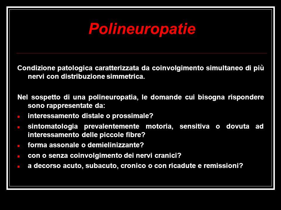 Polineuropatie Condizione patologica caratterizzata da coinvolgimento simultaneo di più nervi con distribuzione simmetrica.