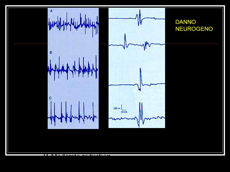 DANNO NEUROGENO Reduced motor units A-mild, nonspecific B-Moderate reduction C-Severe reduction.