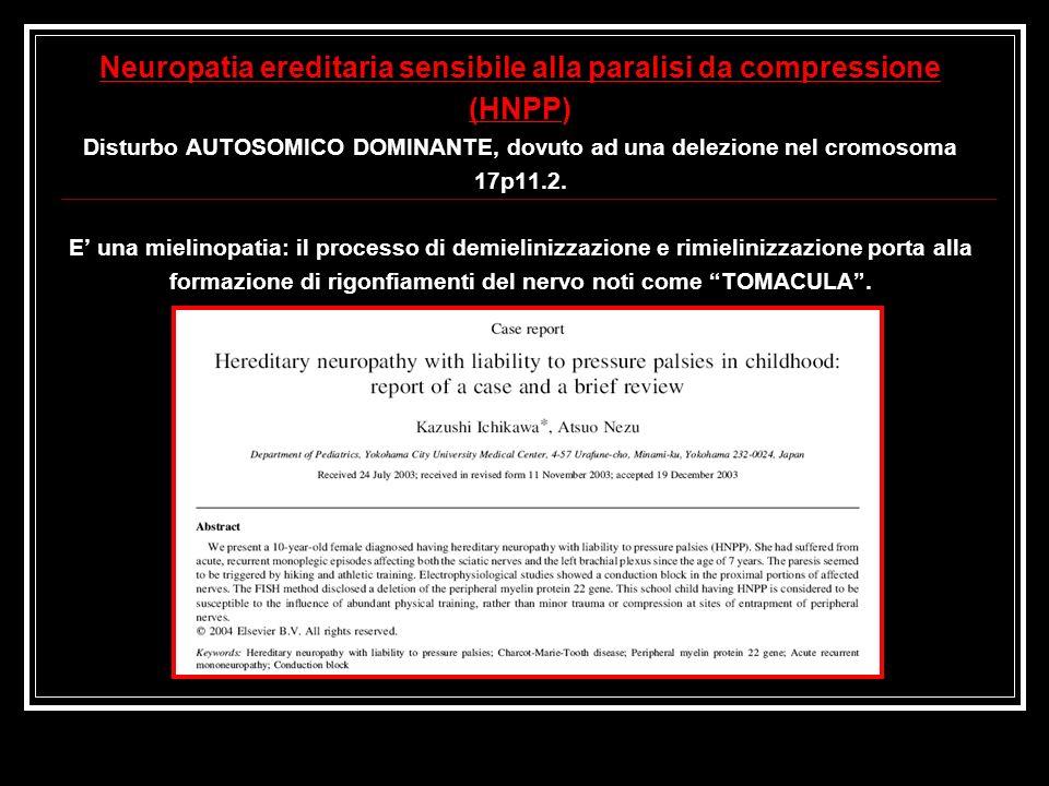 Neuropatia ereditaria sensibile alla paralisi da compressione (HNPP) Disturbo AUTOSOMICO DOMINANTE, dovuto ad una delezione nel cromosoma 17p11.2.