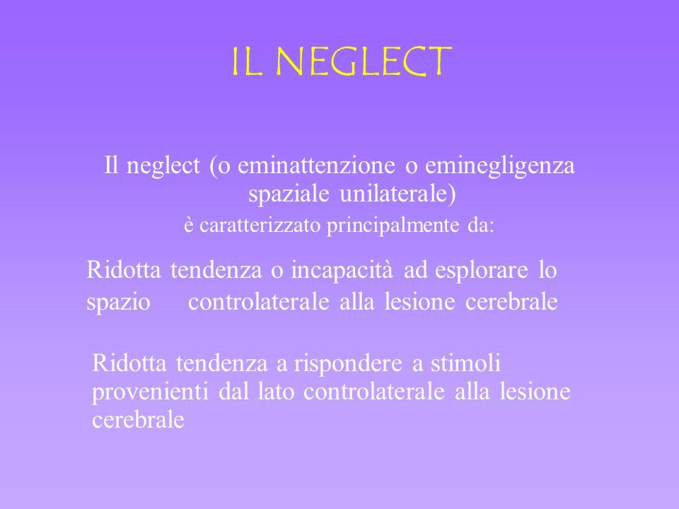 IL NEGLECT Il neglect (o eminattenzione o eminegligenza spaziale unilaterale) è caratterizzato principalmente da: