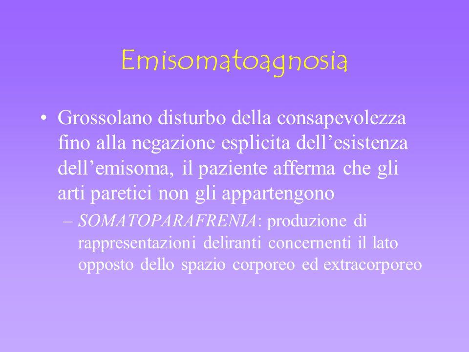 Emisomatoagnosia