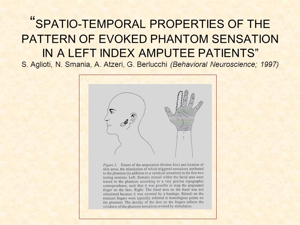 SPATIO-TEMPORAL PROPERTIES OF THE PATTERN OF EVOKED PHANTOM SENSATION IN A LEFT INDEX AMPUTEE PATIENTS S.