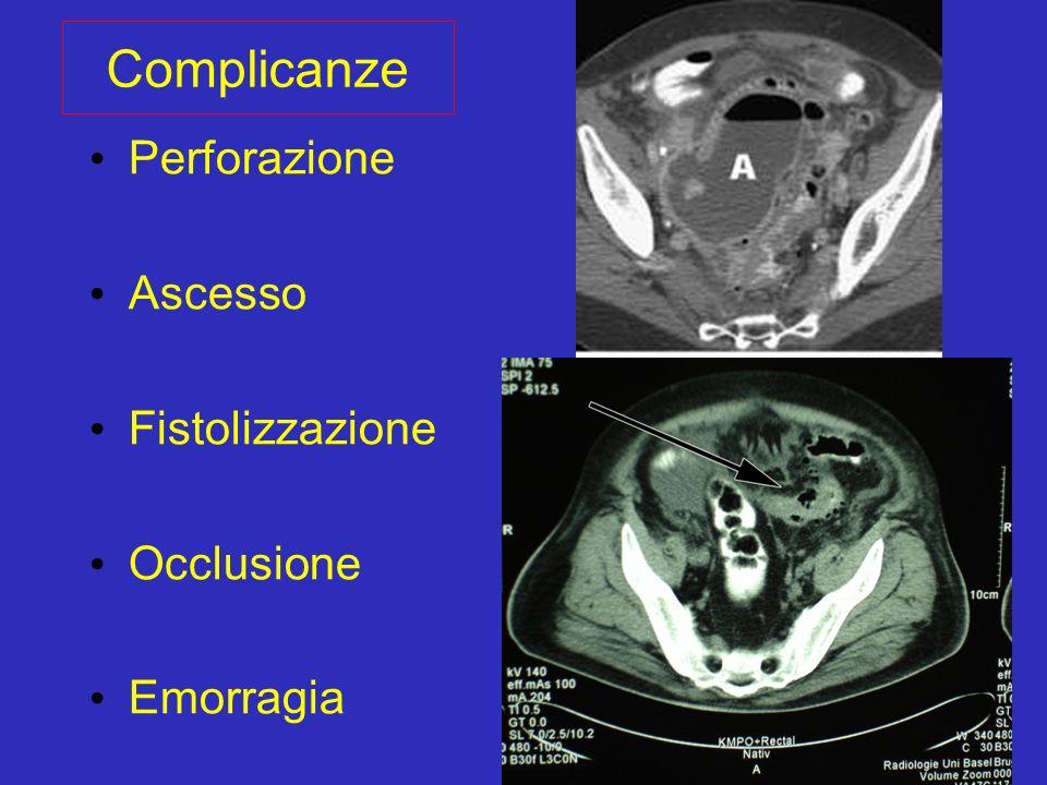 Complicanze Perforazione Ascesso Fistolizzazione Occlusione Emorragia