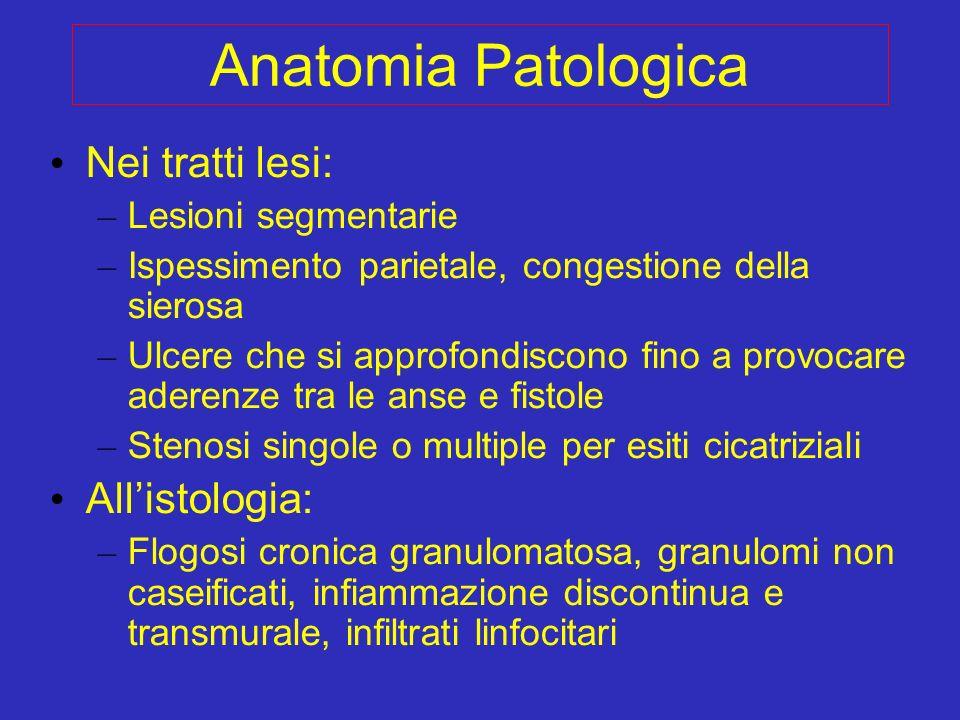 Anatomia Patologica Nei tratti lesi: All'istologia: