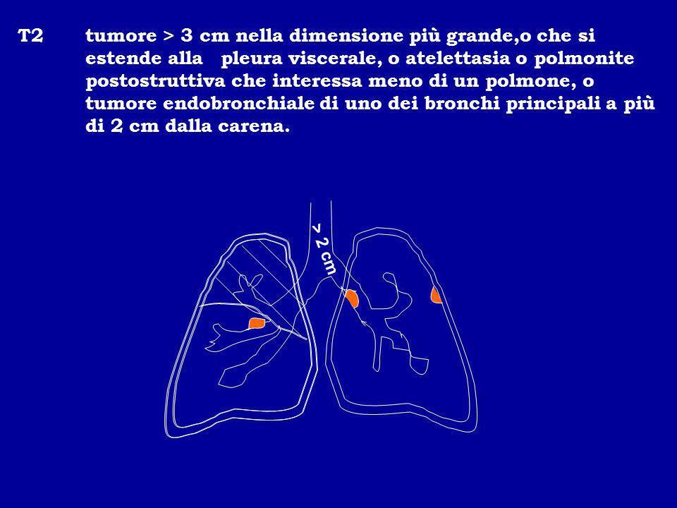 T2 tumore > 3 cm nella dimensione più grande,o che si estende alla pleura viscerale, o atelettasia o polmonite postostruttiva che interessa meno di un polmone, o tumore endobronchiale di uno dei bronchi principali a più di 2 cm dalla carena.